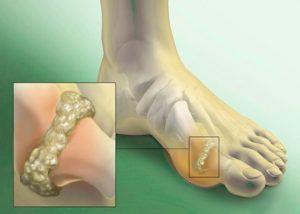 подагра или артрит