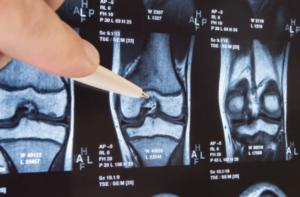контрастное усиление при мрт суставов